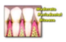 internal of teeth showing moderate periodontal disease