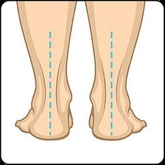 Foot posture-01.png