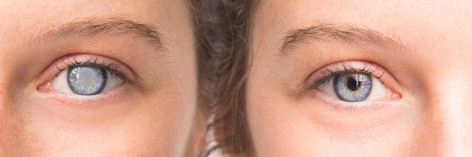 Cataract Surgery— What Does it Mean for Me?