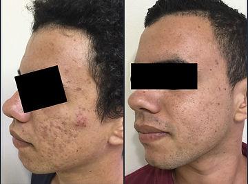 cicatriz acne lado cara.JPG