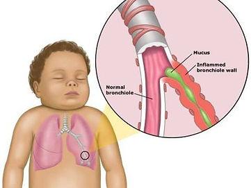 Bij acute aandoening van de luchtwegen worden de longen worden gezuiverd van overtollig slijm