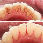 gigiena (4).JPG