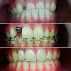 orthodont (5).JPG