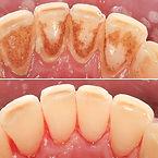 gigiena (2).JPG