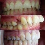orthodont (4).JPG