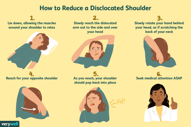 how-to-reduce-a-dislocated-shoulder-2549