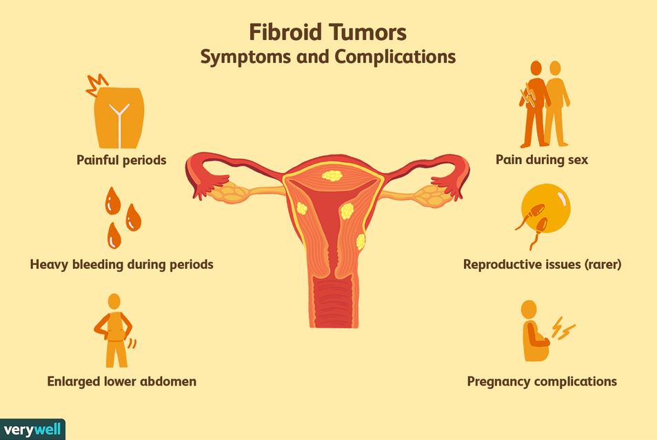 things-to-know-uterine-fibroid-tumors-35