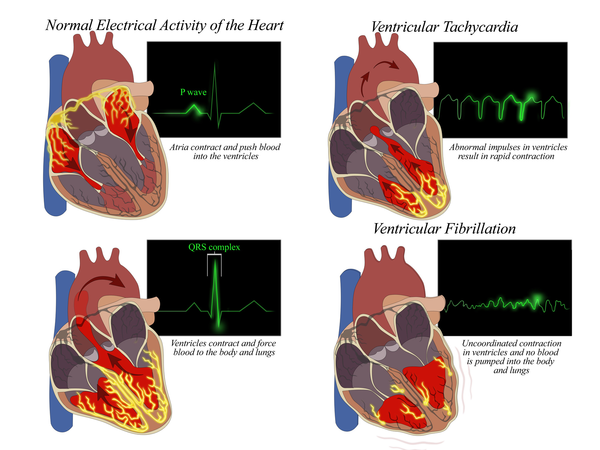 Electrical Heart Impulses