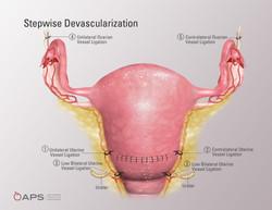 Stepwise Devascularization