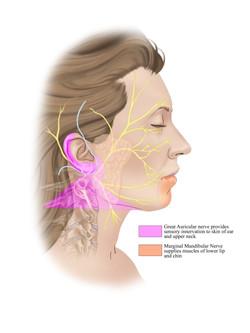 Nerves involved in Facelift