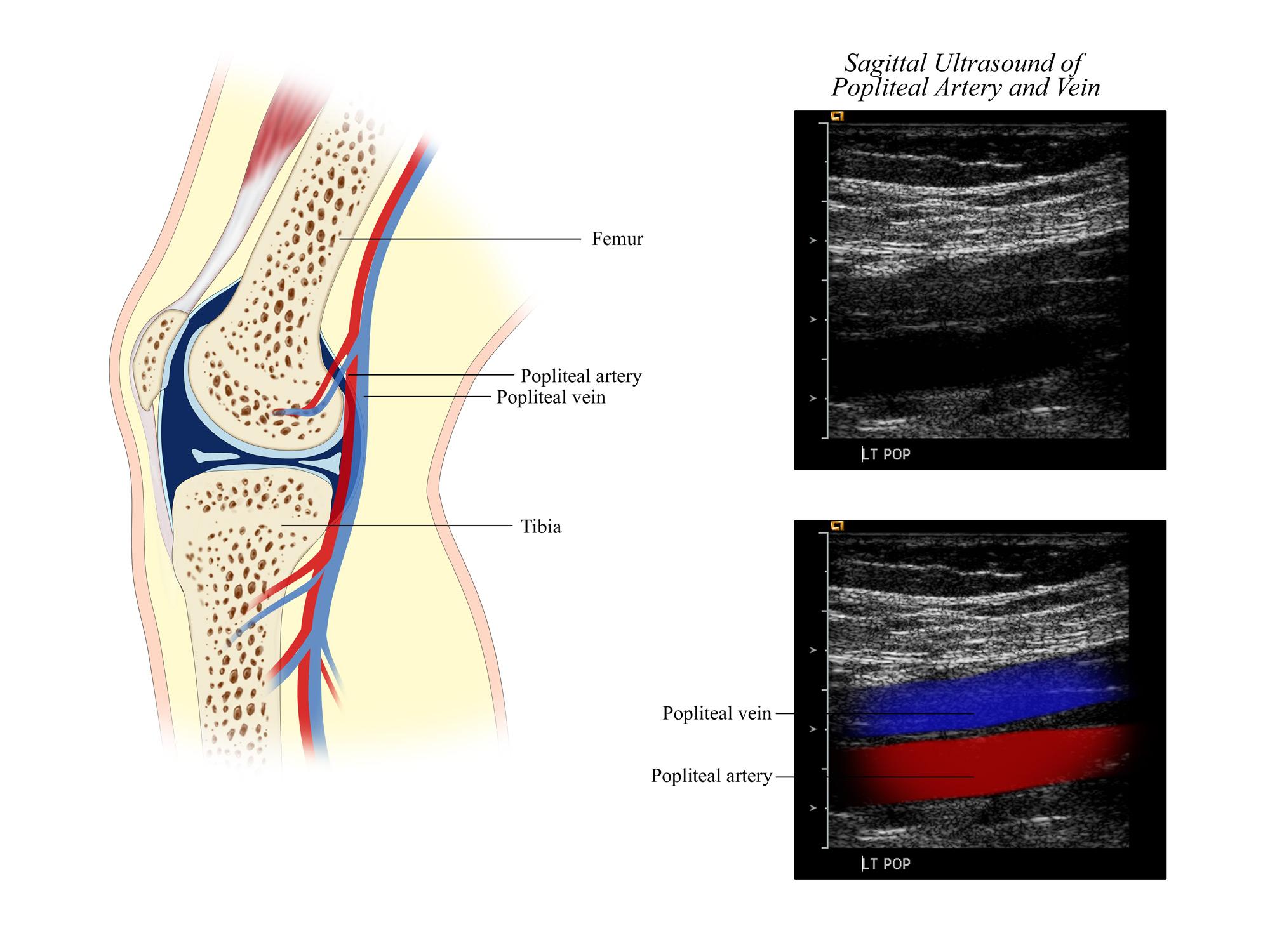 Popliteal Artery and Vein