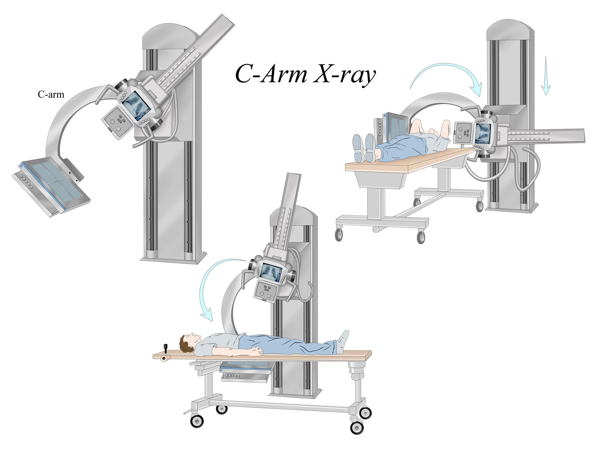 C-Arm X-ray