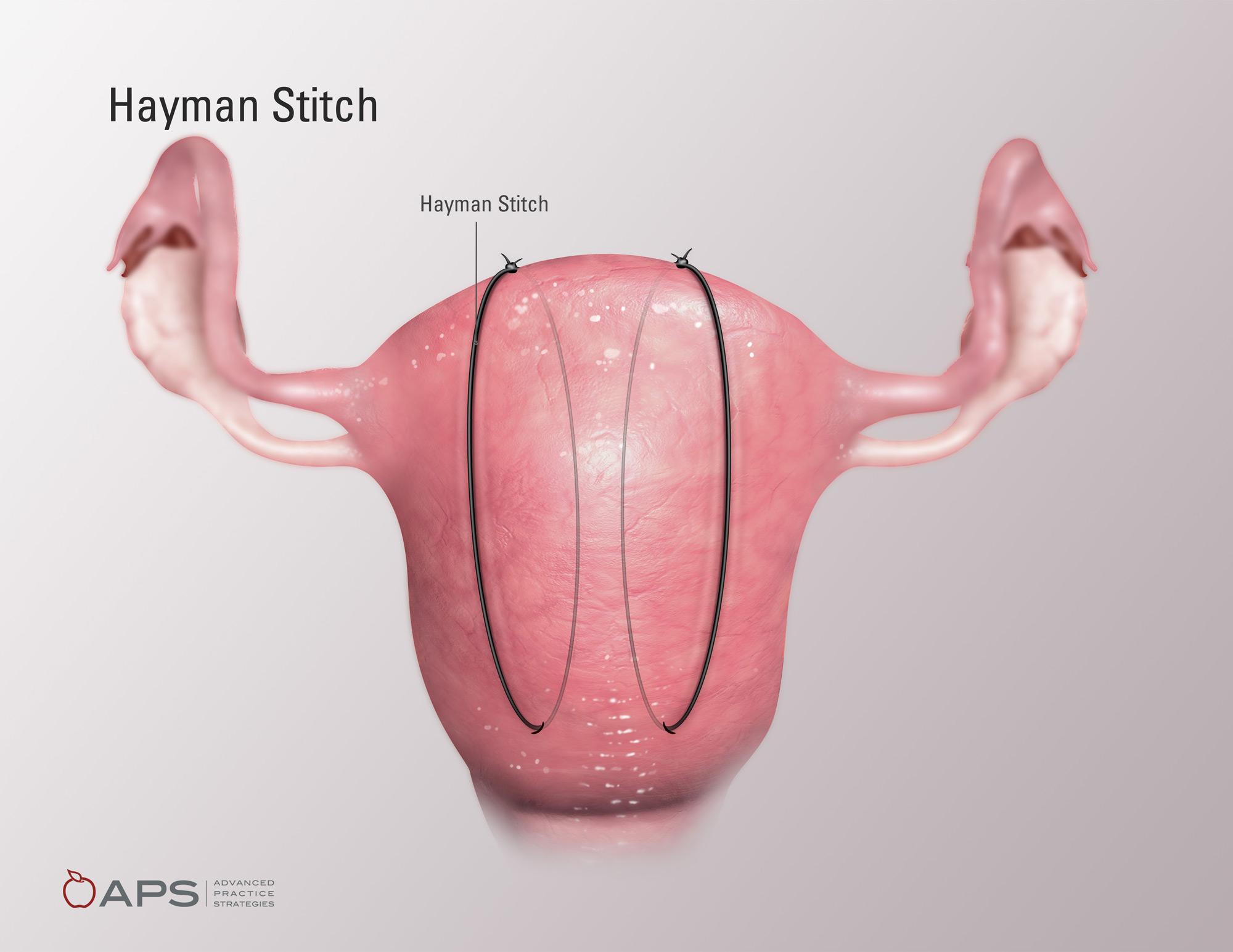 Hayman Stitch