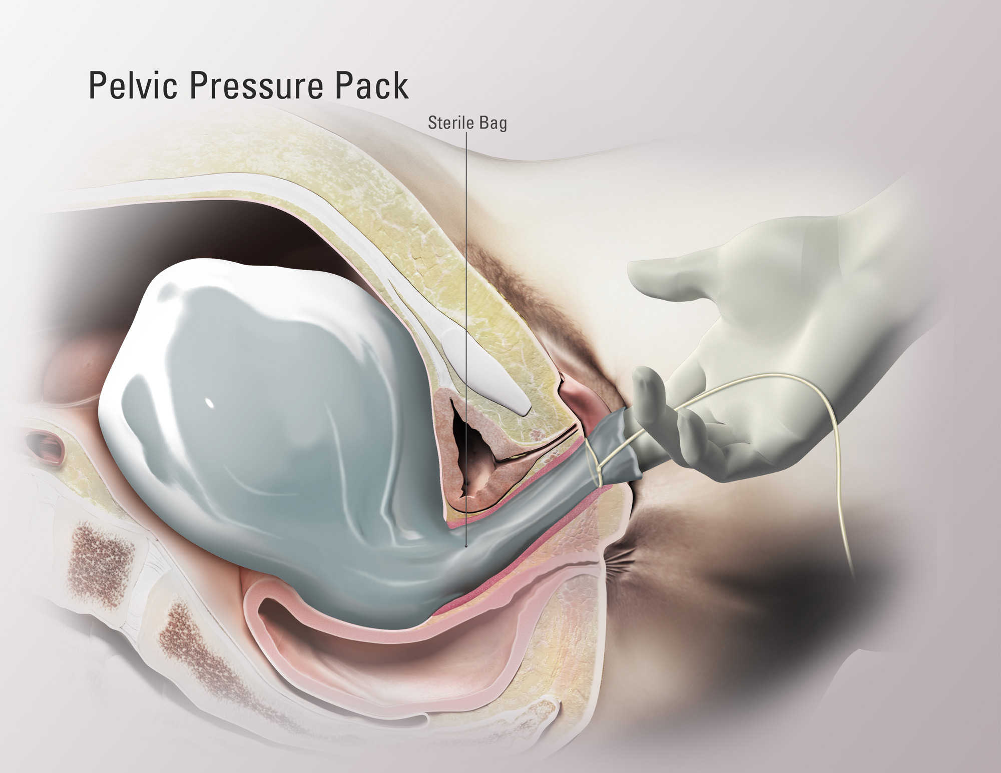 Pelvic Pressure Pack