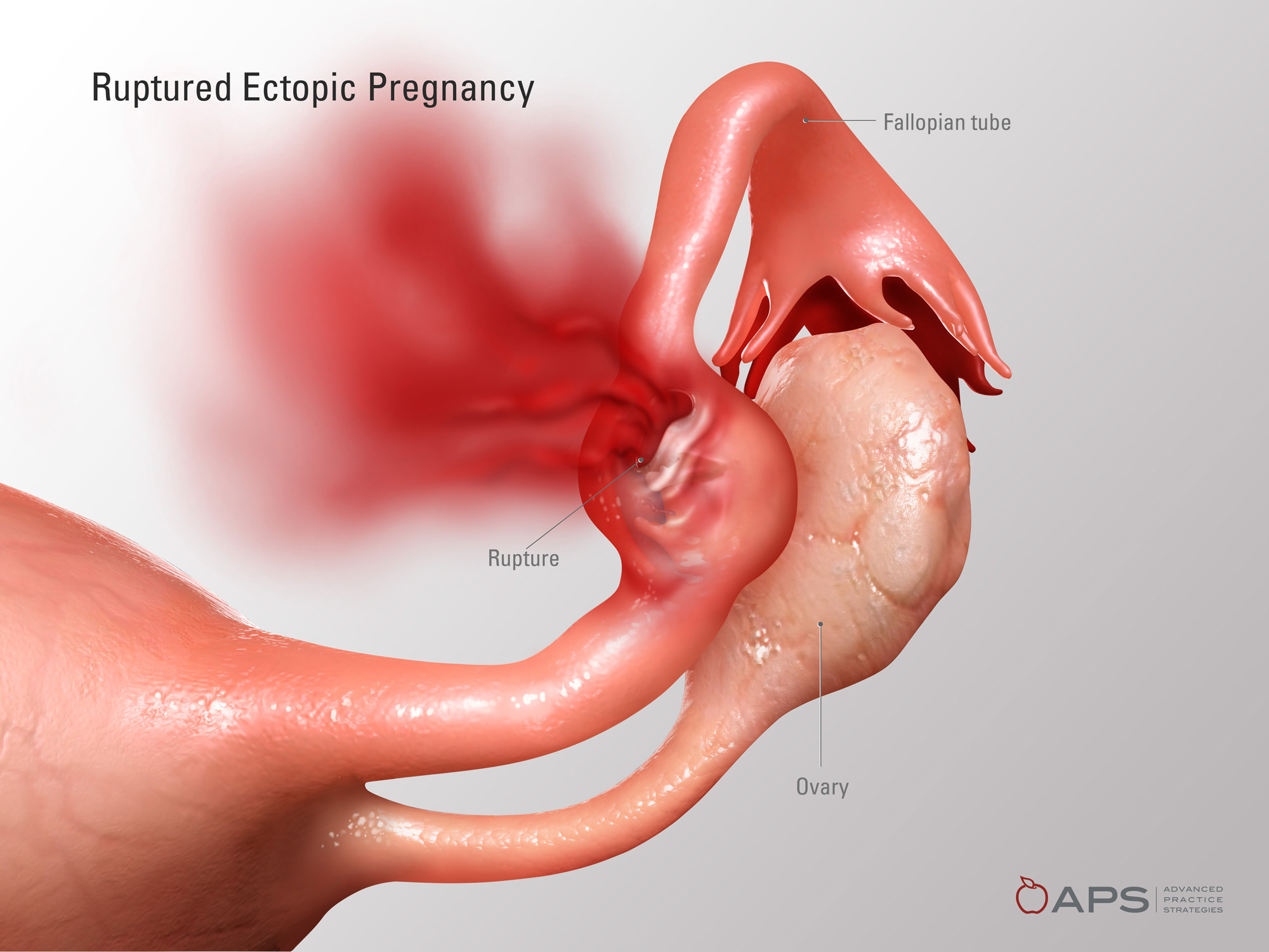 Ruptured Ectopic