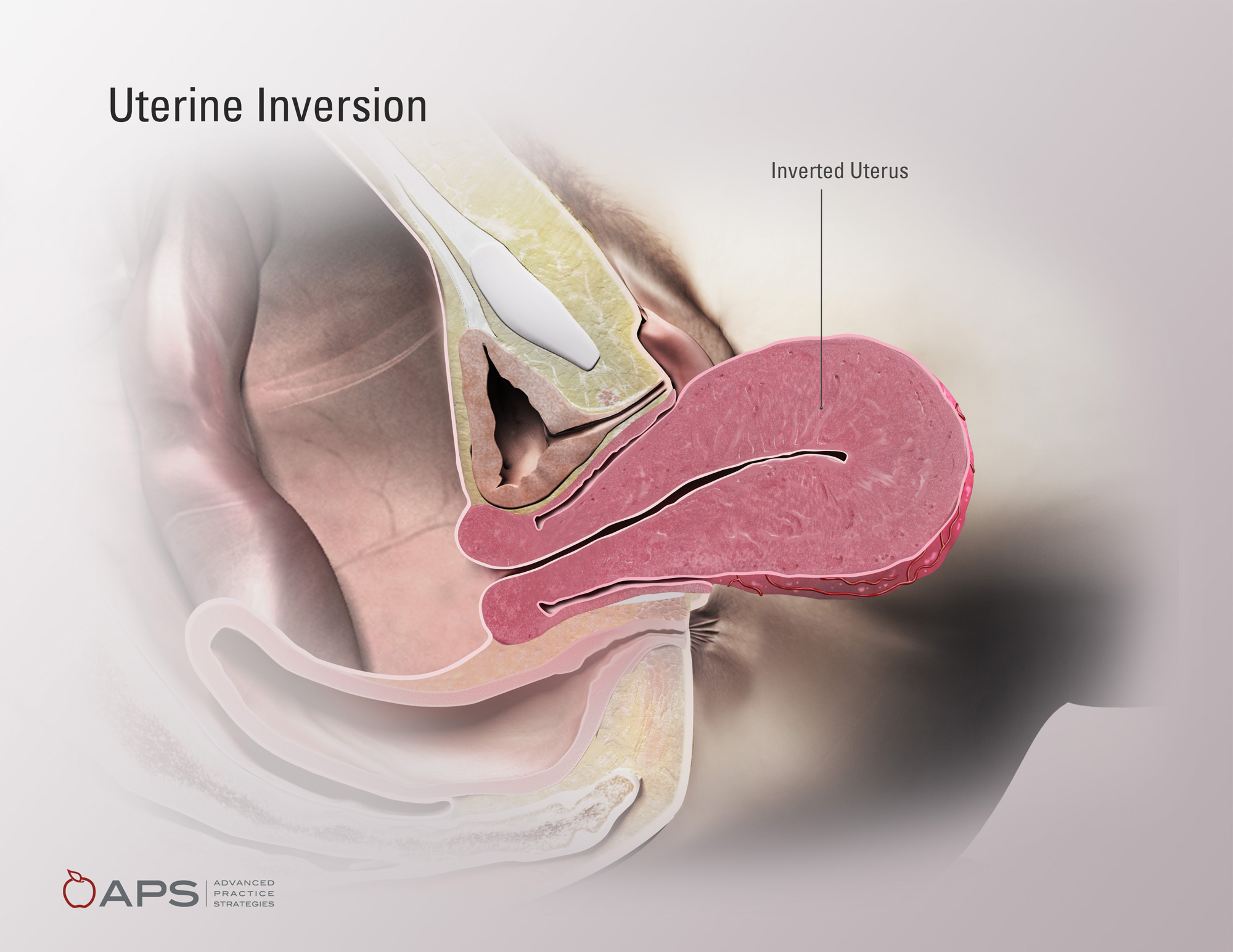 Uterine Inversion