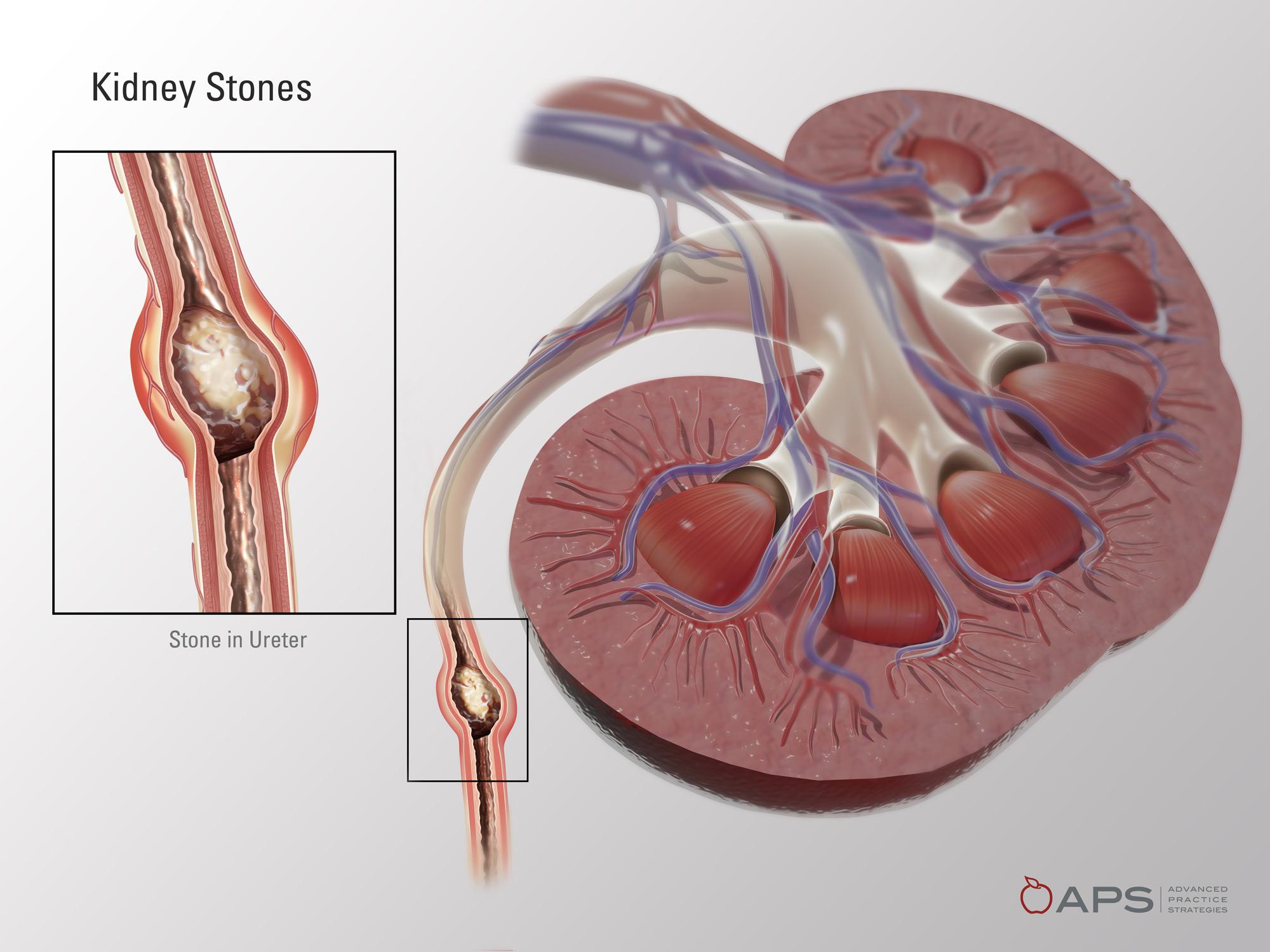 Kidney Stone 1