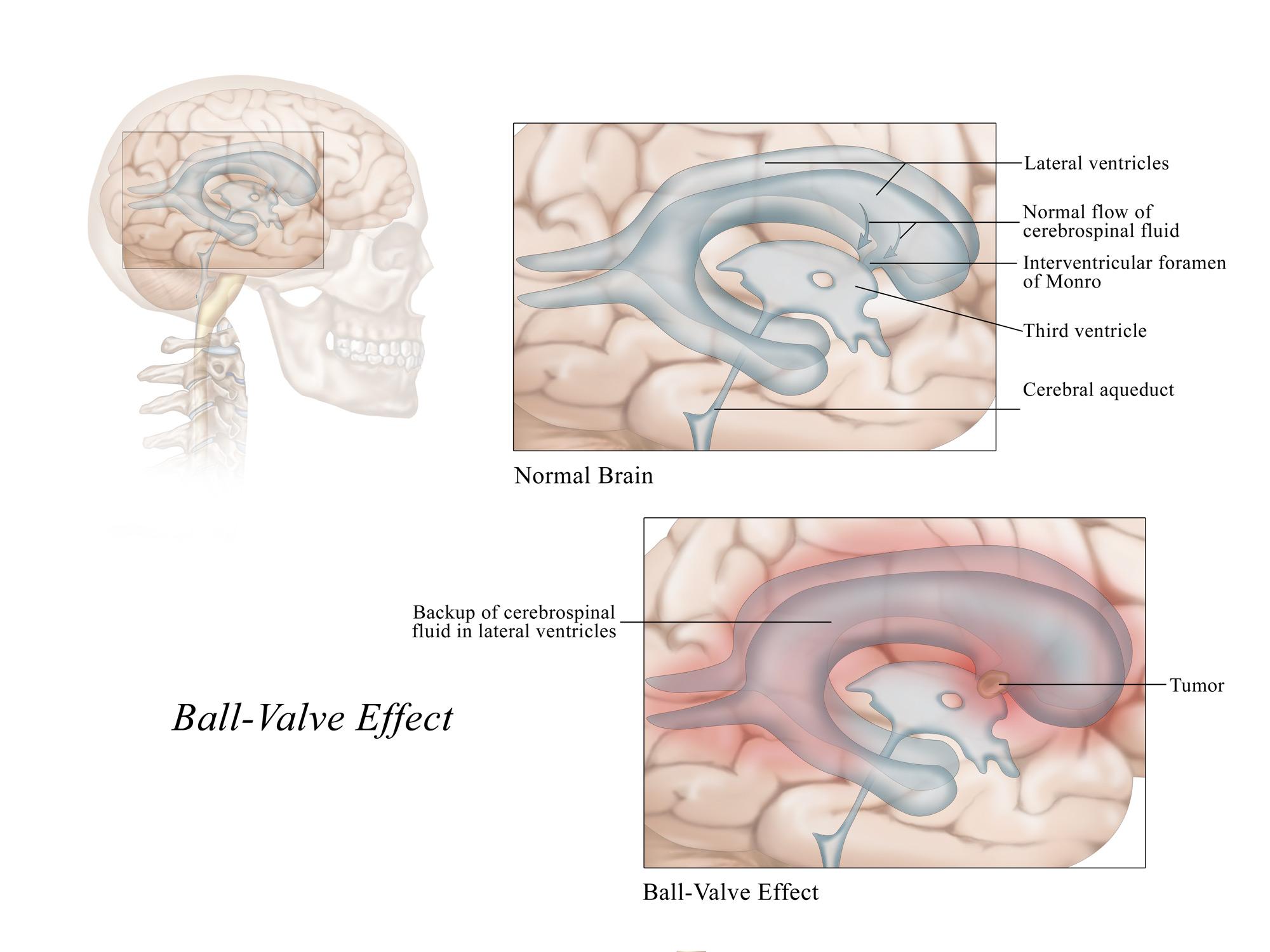 Ball-Valve Effect