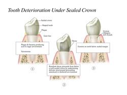 Tooth Deterioration under Crown