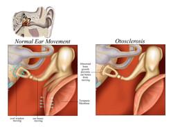 Otosclerosis 2