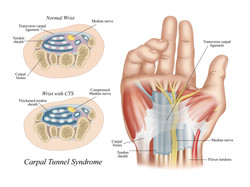 Carpul Tunnel Syndrome
