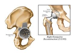 Right Hemipelvic Reconstruction