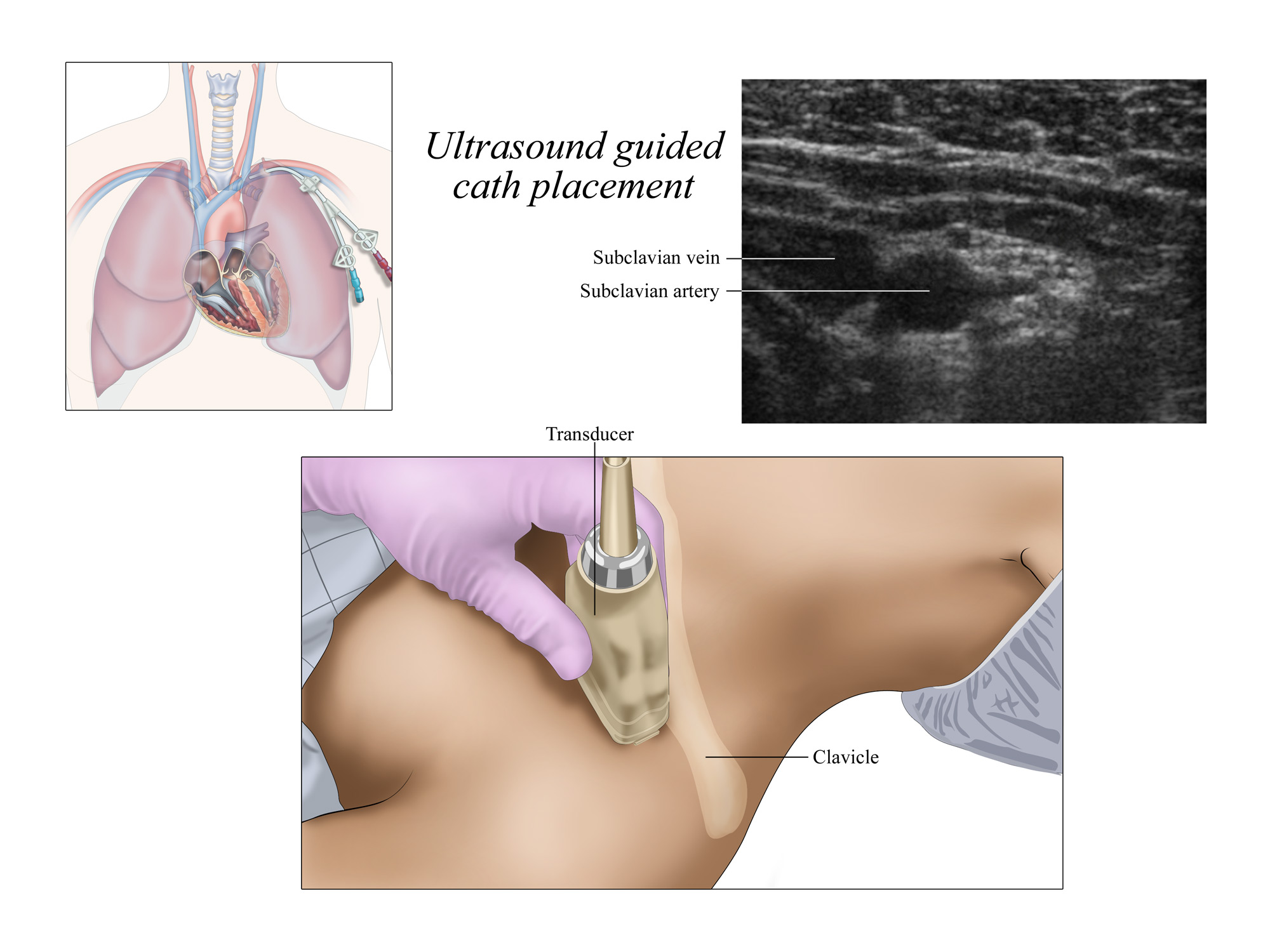 Cath Placement