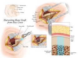 Harvesting Bone Graft