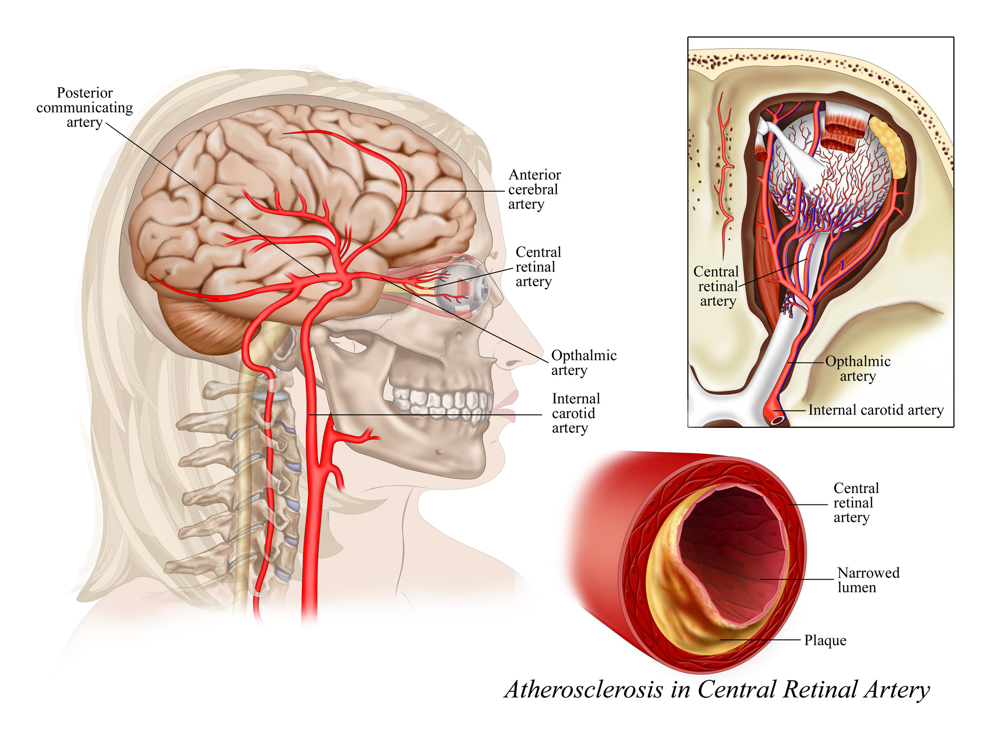 Plaque in Central Retinal Artery