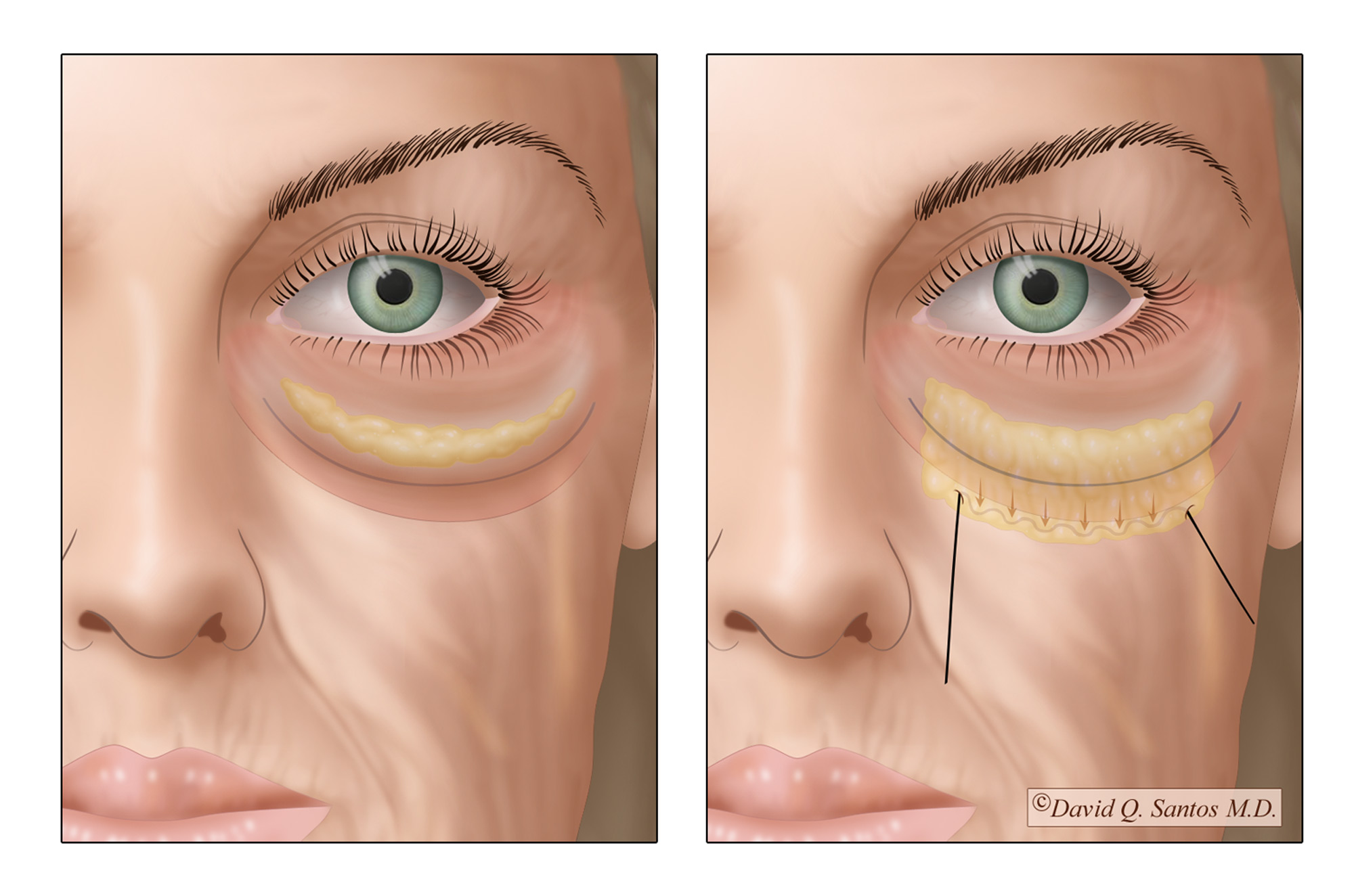 Lower Eye Lift