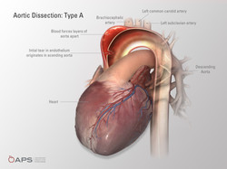 Aortic Dissection: Type B