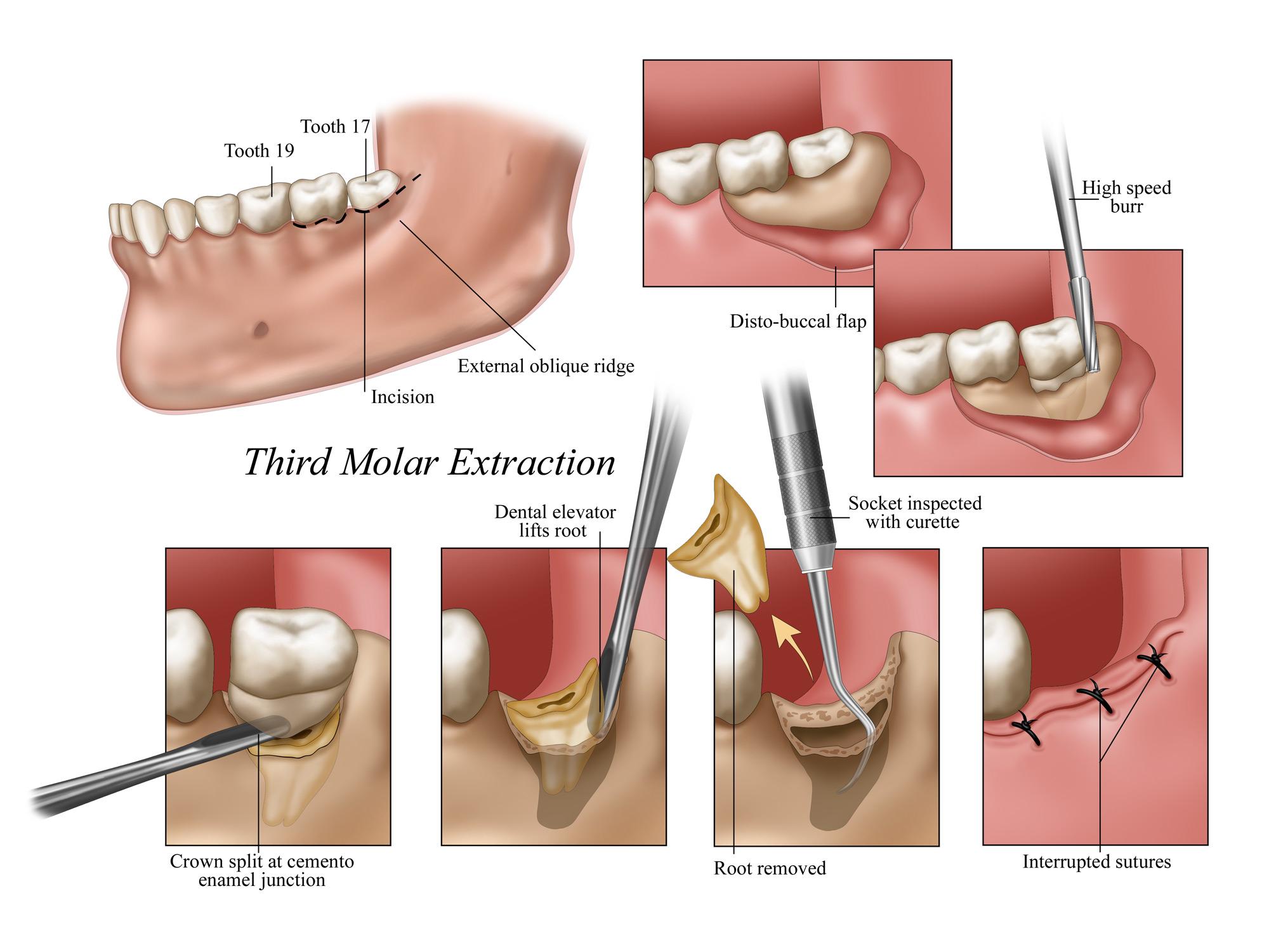 Third Molar Extraction