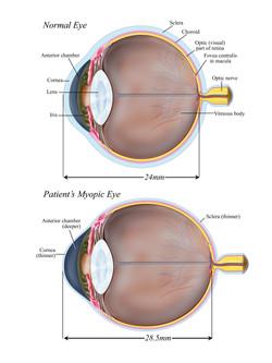 Normal vs. Myopic Eye