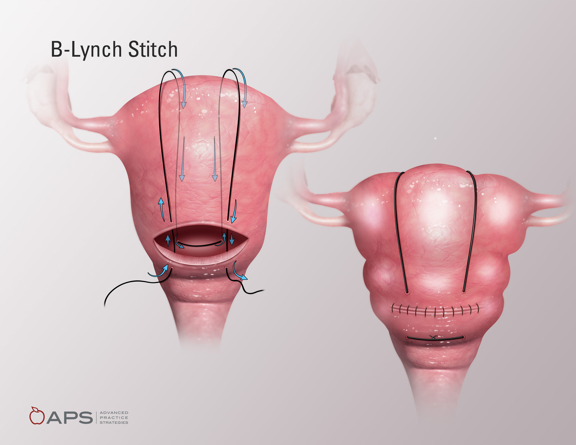 B-Lynch Stitch