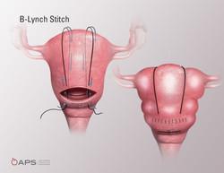 B-Lynch Stitch