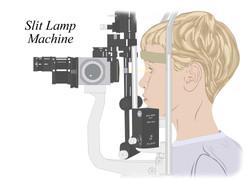 Slit Lamp Machine
