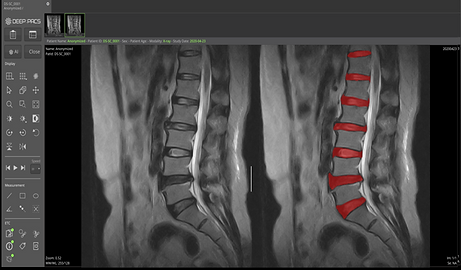 SPINE-ID-01.png