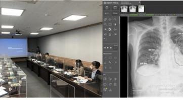 딥노이드, 김해시와 함께 의료영상 판독 서비스 추진
