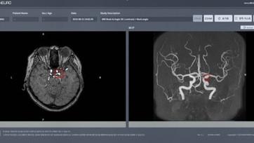 딥노이드, 뇌동맥류 AI 진단 의료기기 품목허가