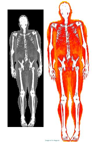 DEXA Body Scan