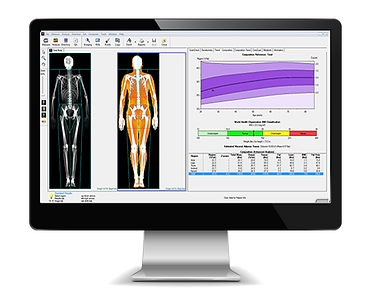 dexa_scan_body_composition.png