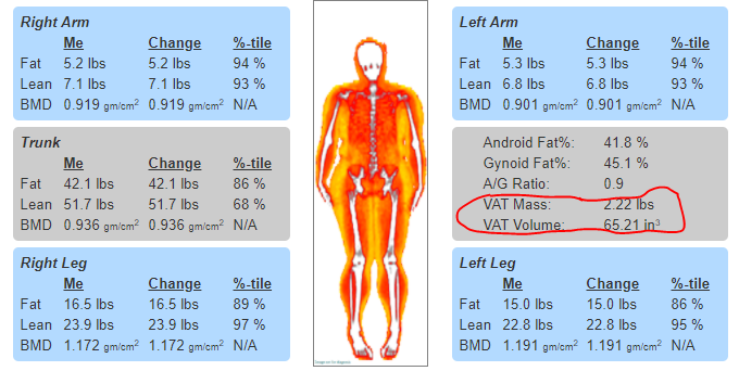 Visceral Fat Measurement, Increased Illness Risk, Visceral Fat Risk, Live Lean Rx Boca, DEXA Scan