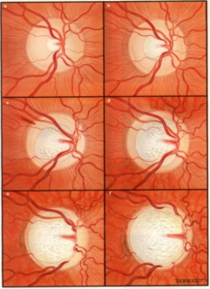 Optic Nerve in Glaucoma