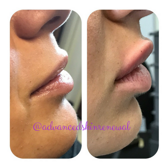 Before and After Lip Filler Cleveland, Ohio
