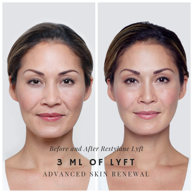 Before and after Restylane Lyft for Cheek Aumentation