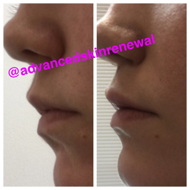 Before and After Restylane Defyne .5ml