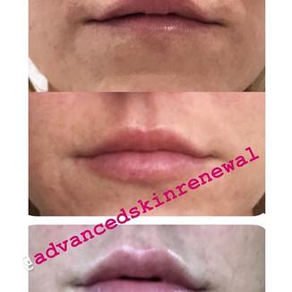 Lip Progression