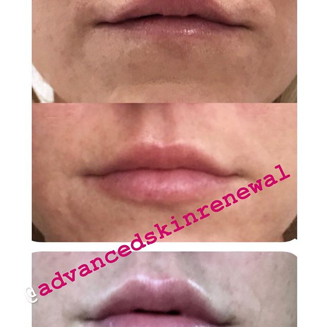 Lip Progression