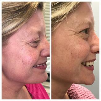 Facial Vein Removal