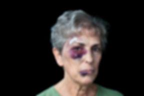elderly abuse lawyer, nursing home abuse lawyer